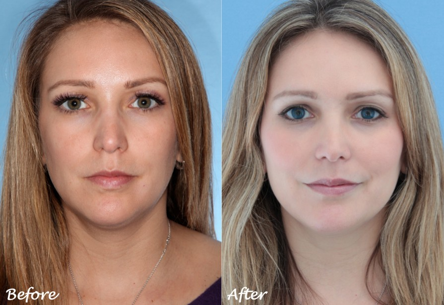 restylane vs juvederm under eyes