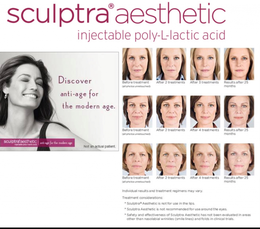 Sculptra - Finchley Cosmetic Salon