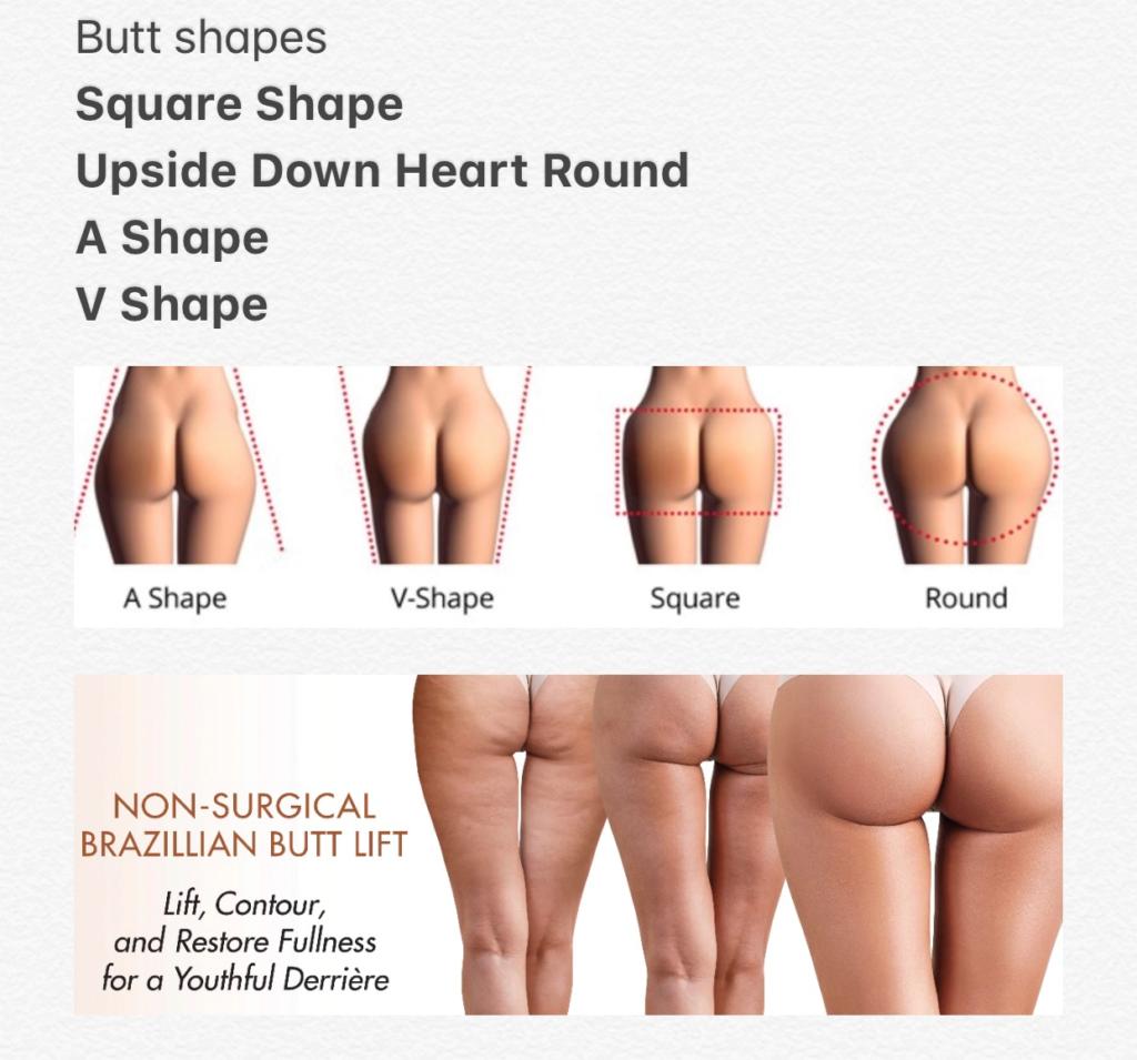 Sculptra Non Surgical Butt Lift - Finchley Cosmetic Salon