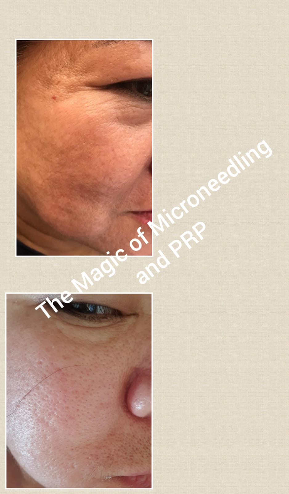 PRP Vampire Facial - Finchley Cosmetic Clinic
